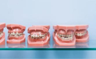 types de malocclusions en orthodontie